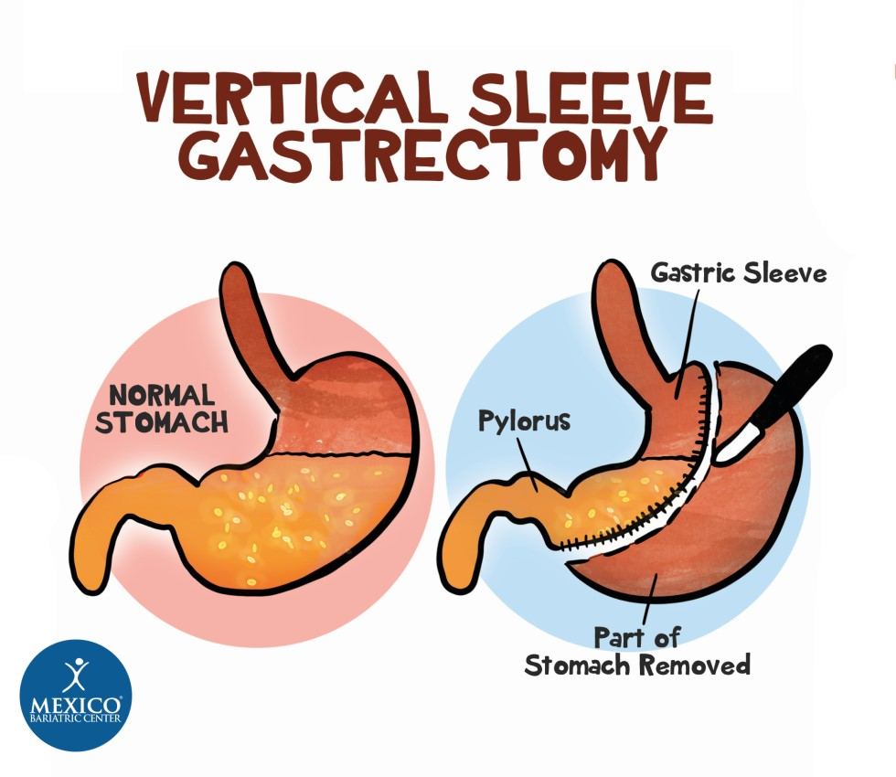Vertical Sleeve Gastrectomy - Mexico Gastric Sleeve