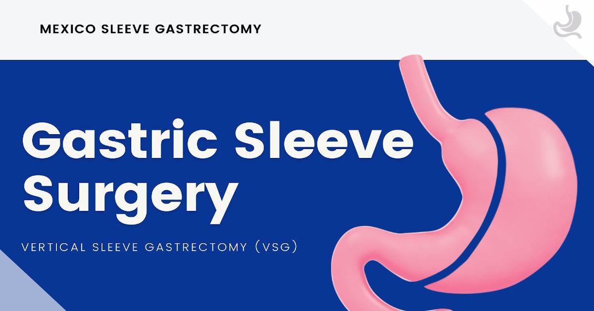 Gastric Sleeve Surgery VSG - Mexico Sleeve Gastrectomy