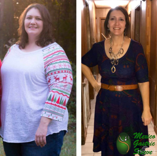 Sara Before and After Vertical Sleeve Gastrectomy - Best Gastric Sleeve Surgeons