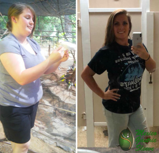 Taylor Before and After Gastric Sleeve Surgery - Best Gastric Sleeve Surgeons