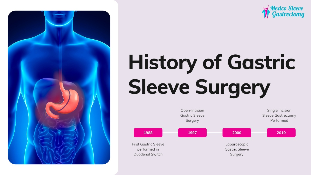 The History of Gastric Sleeve Surgery (Vertical Sleeve Gastrectomy)