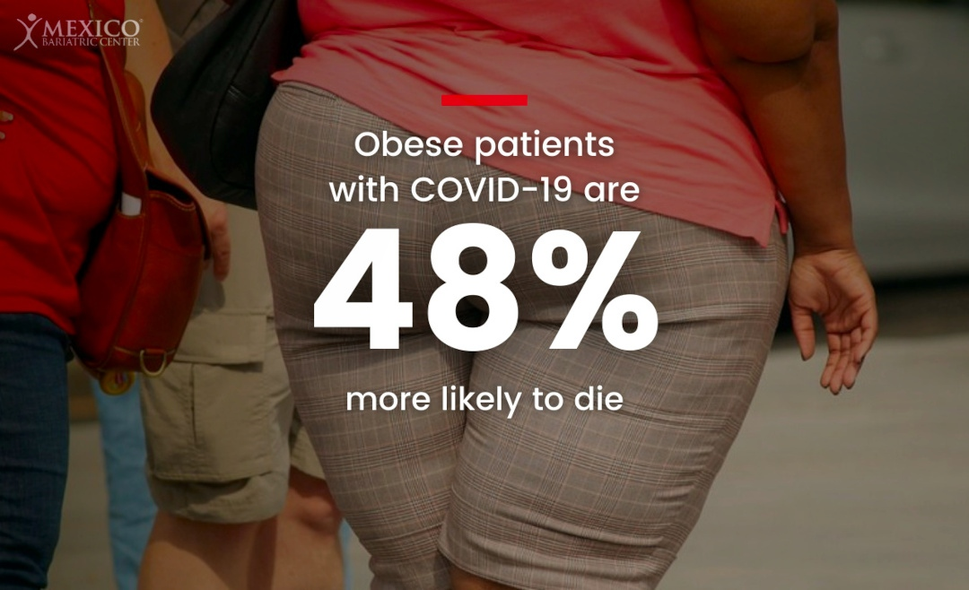 Obese with COVID-19 are 48% more likely to die