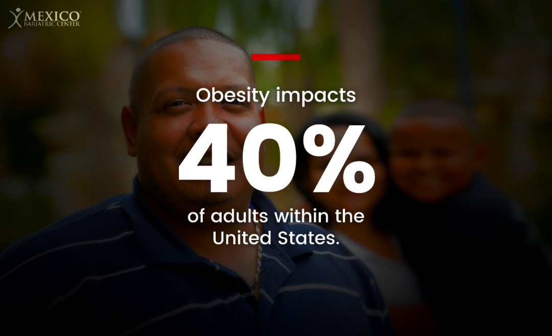 Obesity impacts 40% of all United States adults